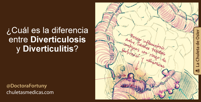 Cuál es la diferencia entre DiverticulOSIS y DiverticulITIS