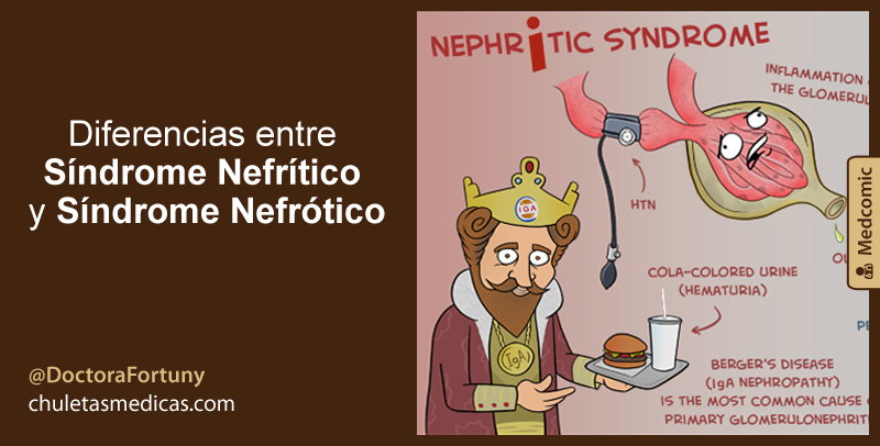 Diferencias entre Síndrome Nefrítico y Síndrome Nefrótico