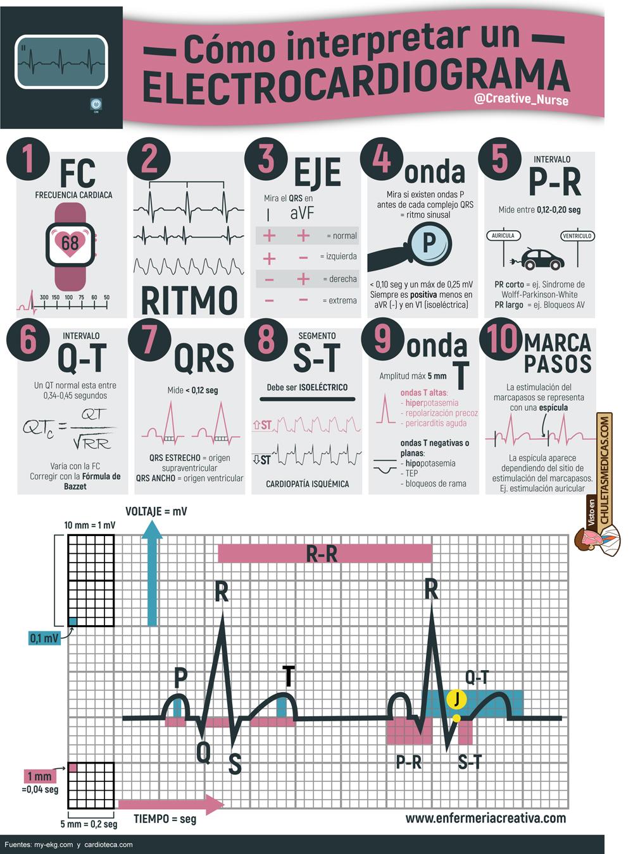 10 sencillos pasos para interpretar un Electrocardiograma chuleta