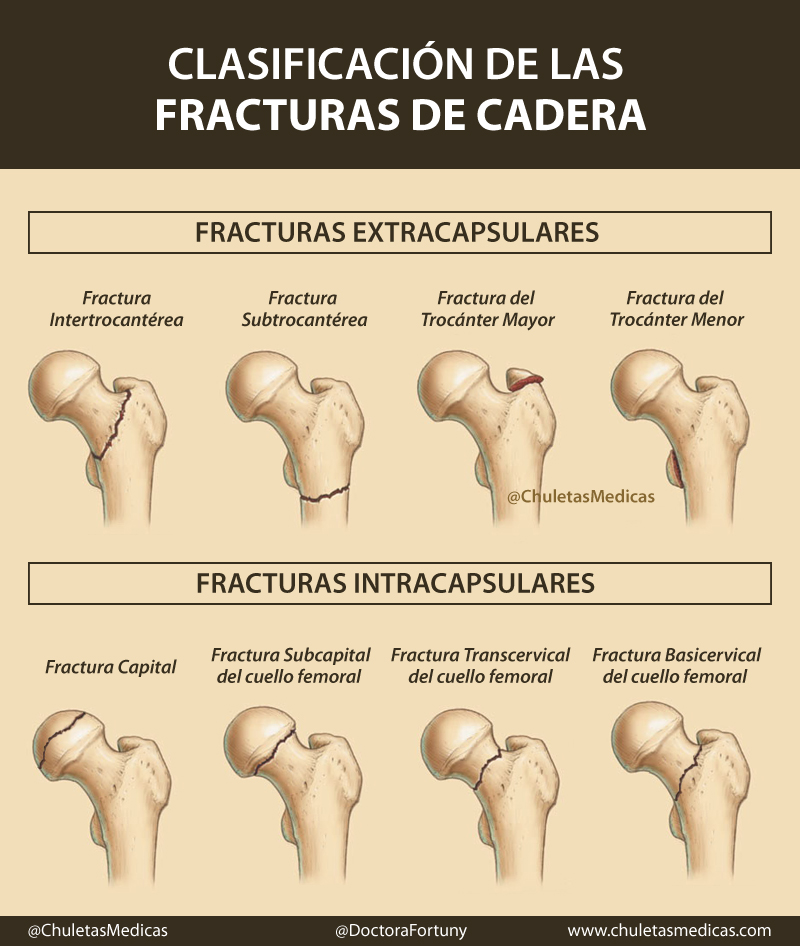 Clasificación de las Fracturas de Cadera chuleta