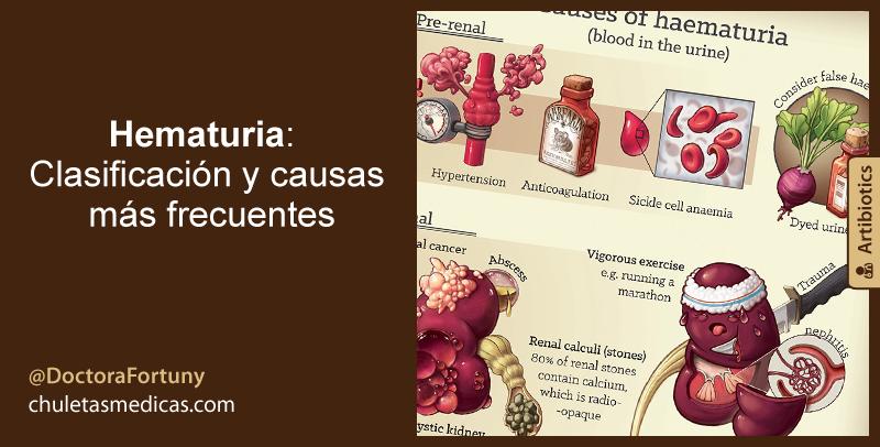 Hematuria: Clasificación y causas más frecuentes