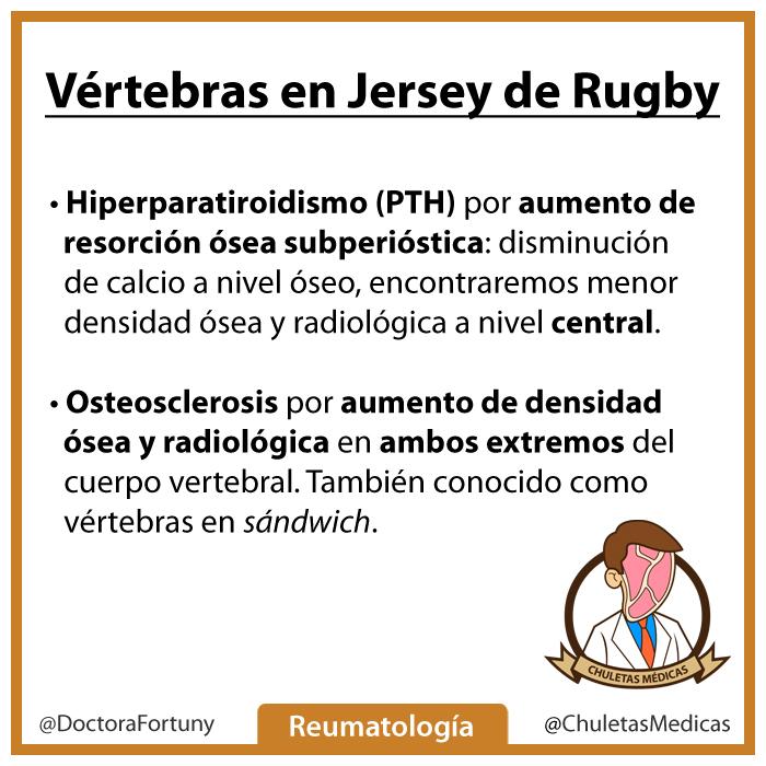 Vértebras en jersey de rugby chuleta