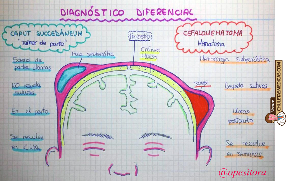Diferencias entre Cefalohematoma y Caput Succedaneum chuleta