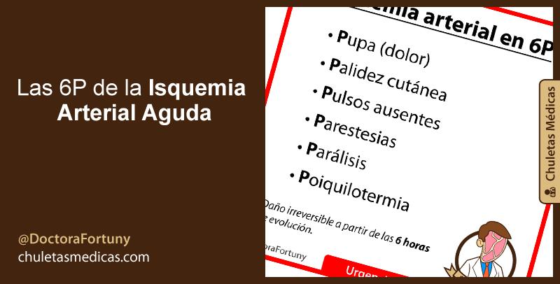 Las 6P de la Isquemia Arterial Aguda