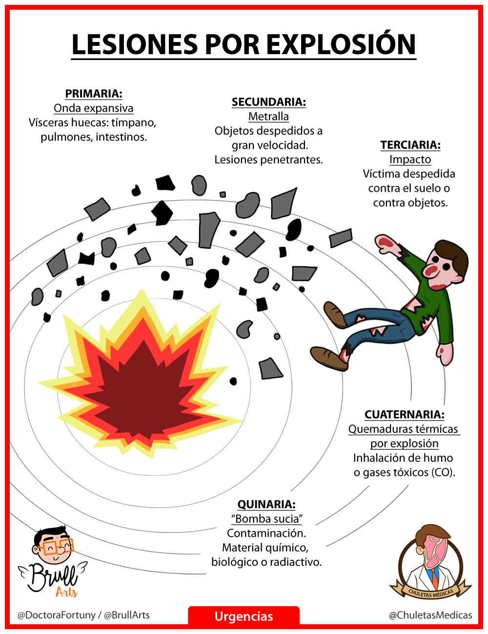 Lesiones por Explosión Chuleta