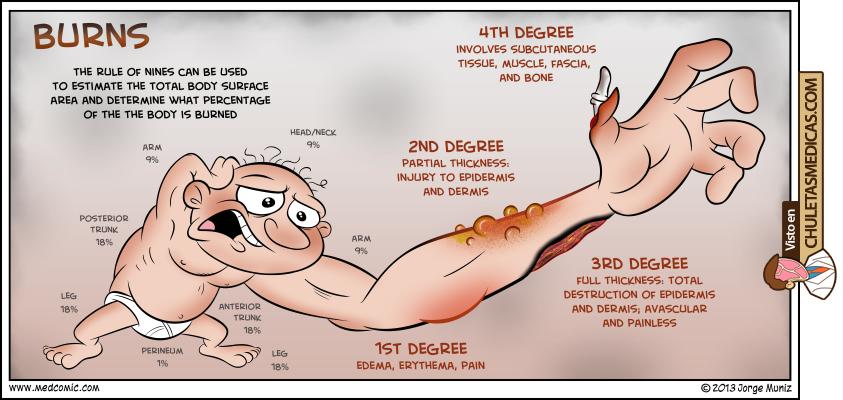 Clasificación quemaduras medcomic chuleta
