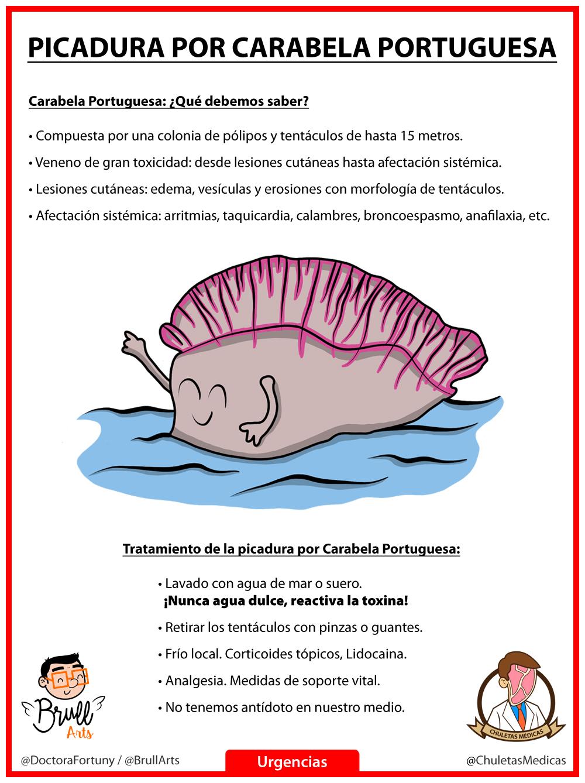 Carabela Portuguesa: ¿Qué hacer ante una picadura? chuleta
