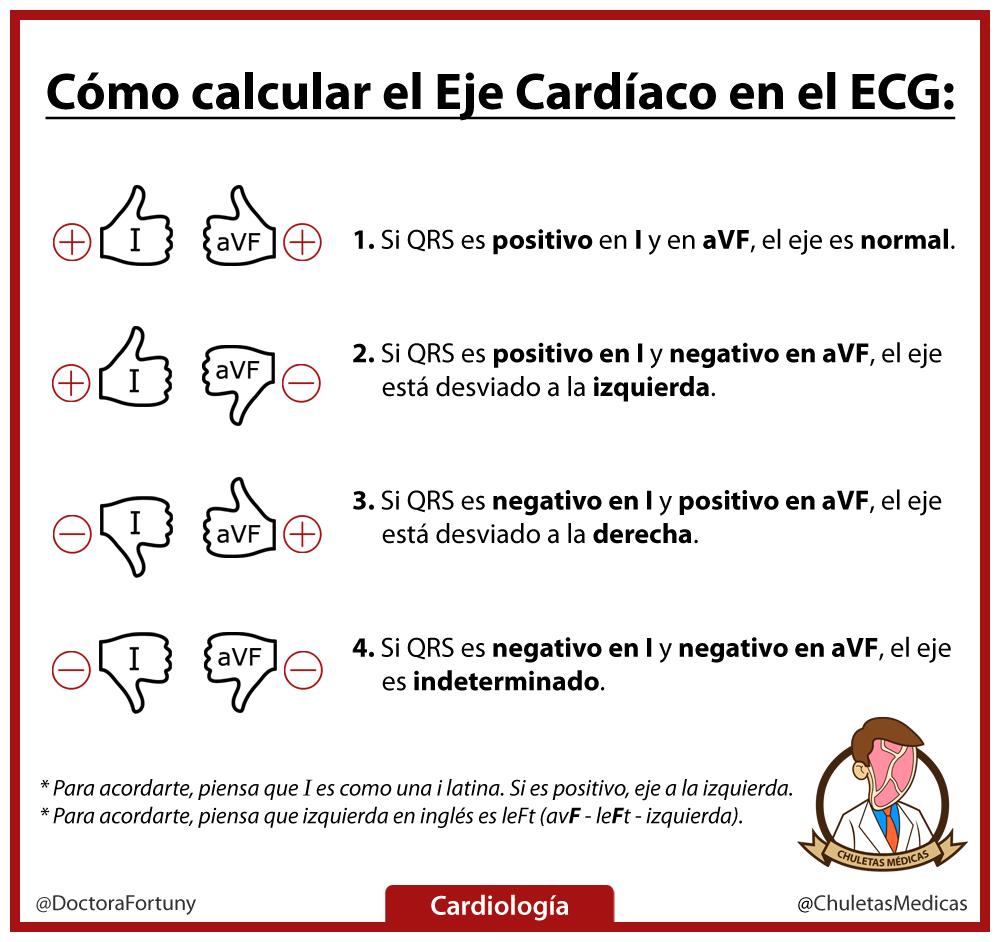 ¿Cómo Calcular el Eje Cardíaco en ECG? chuleta