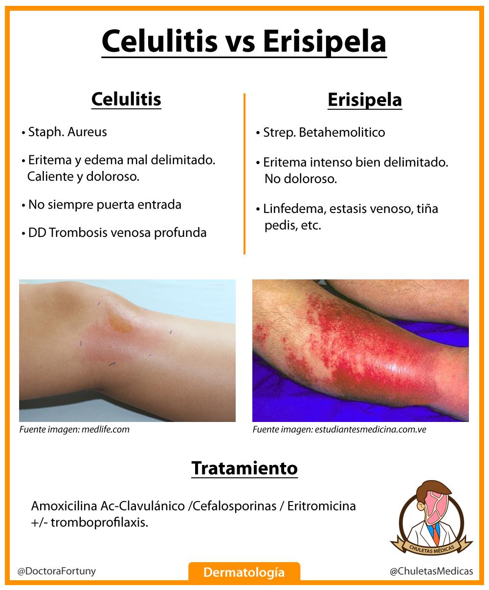 Celulitis vs Erisipela: Diagnóstico diferencial chuleta