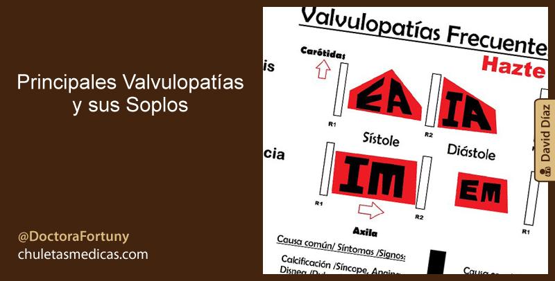 Principales Valvulopatías y sus Soplos