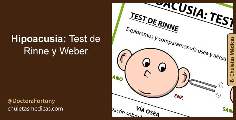 Hipoacusia: Test de Rinne y Weber