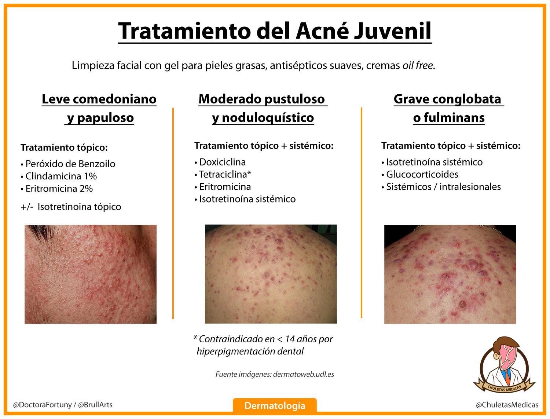 Acné Juvenil: Diagnóstico y trahtamiento chuleta