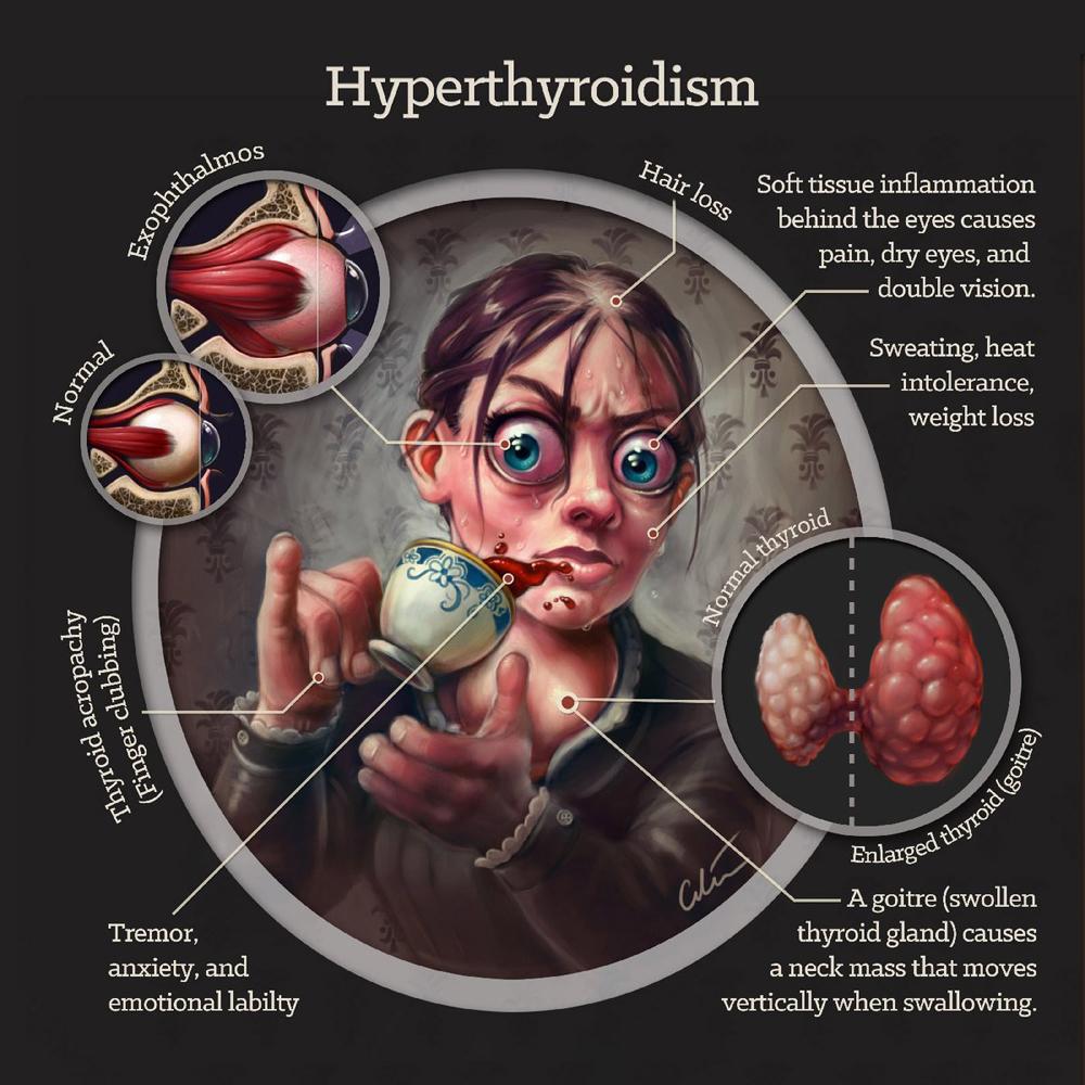 Hipertiroidismo: Signos clínicos artibiotics cilein chuleta
