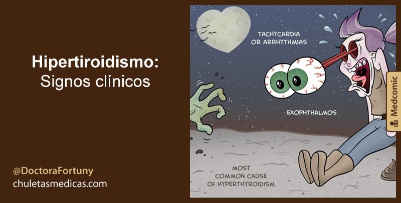Hipertiroidismo: Signos clínicos