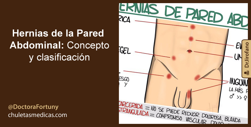 Hernias de la Pared Abdominal: Concepto y clasificación