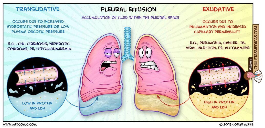 Derrame pleural: Diagnóstico diferencial chuleta