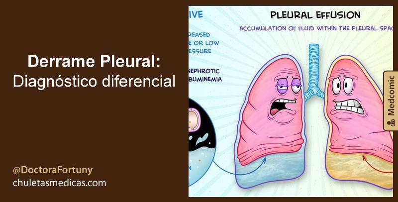 Derrame Pleural: Diagnóstico diferencial