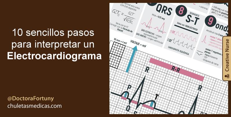 10 sencillos pasos para interpretar un Electrocardiograma