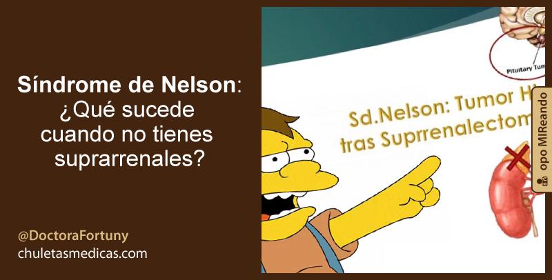 Síndrome de Nelson: ¿Qué sucede cuando no tienes suprarrenales?