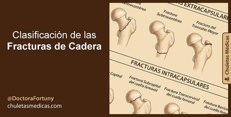 Clasificación de las Fracturas de Cadera