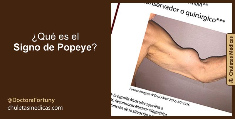 ¿Qué es el Signo de Popeye?